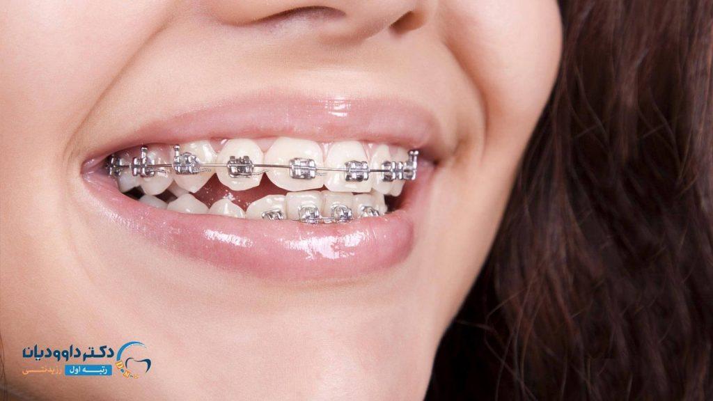 استفاده از فتوگرافی های ارتودنسی در جهت پیشرفت علوم دندان پزشکی