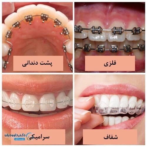 براکت های ست ارتودنسی دندان