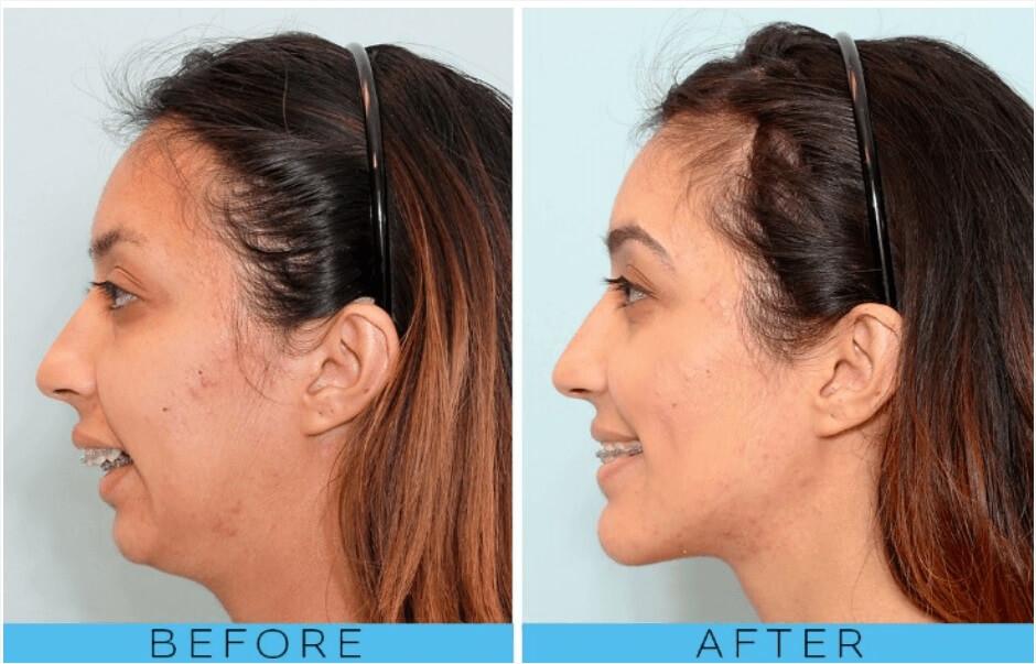 جلوگیری از تغییر شکل لب بعد از ارتودنسی