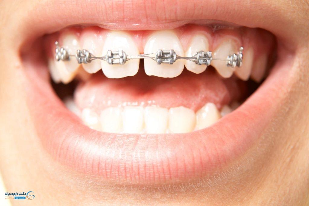 آیا کشیدن دندان 4 در ارتودنسی لازم است؟