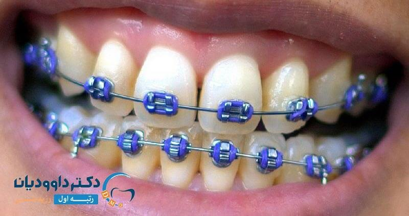 دلایل ارتودنسی دندان