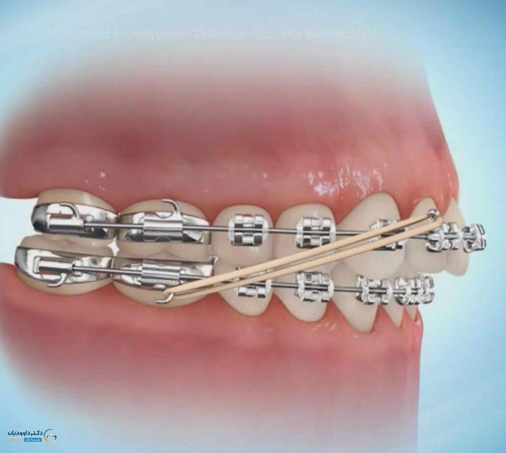 دلایل کشیدن دندان در ارتودنسی