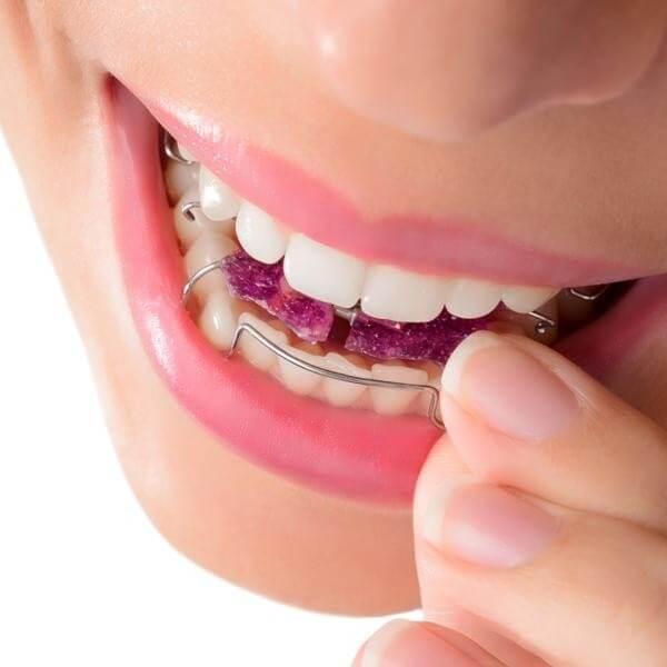 بهترین وضعیت کشیدن دندان سالم در ارتودنسی