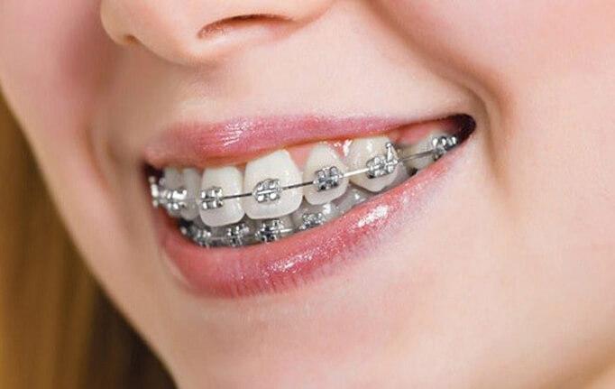 اهمیت کشیدن دندان سالم در ارتودنسی