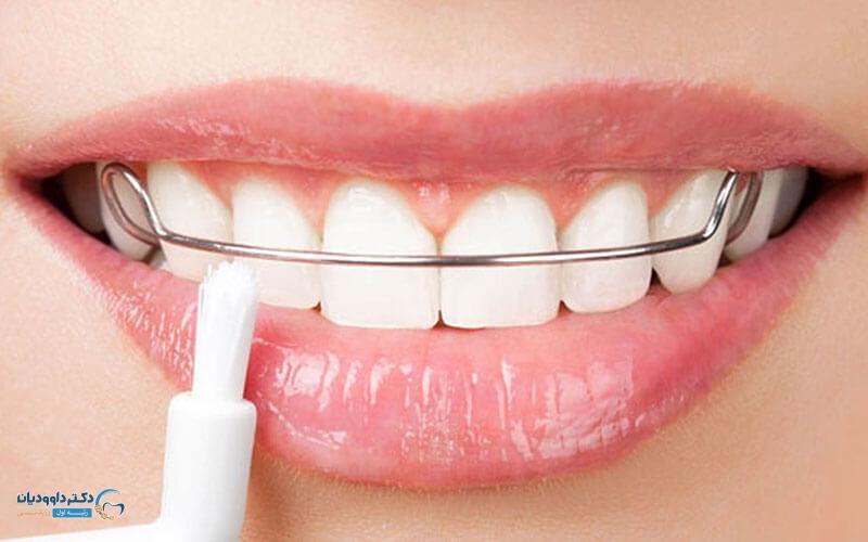 کشیدن دندان 4