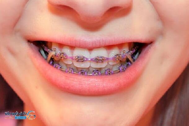 ارتودنسی دندان چیست؟