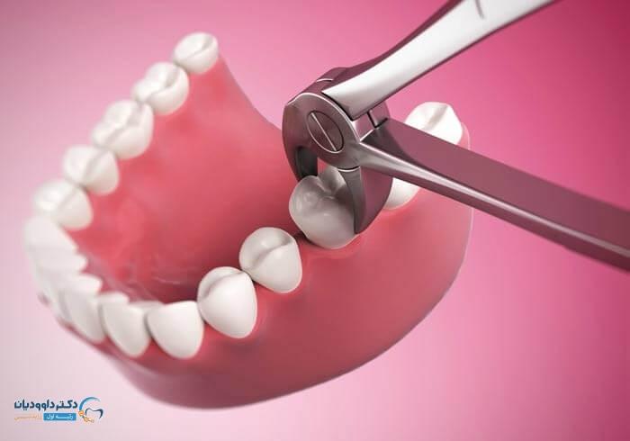 ضرورت کشیدن دندان در درمان ارتودنسی