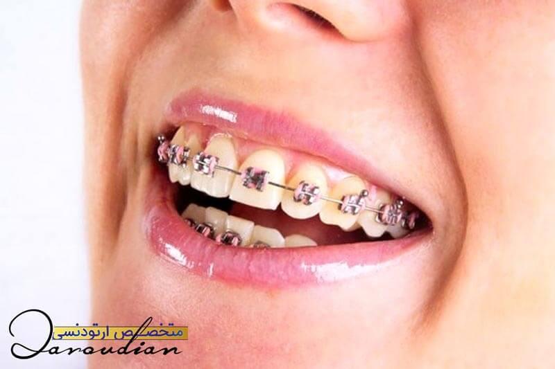 مراقبت های لازم در طول دوره ارتودنسی دندان