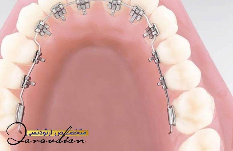 برخی از معایب ارتودنسی لینگوال برای ارتودنسی دندان