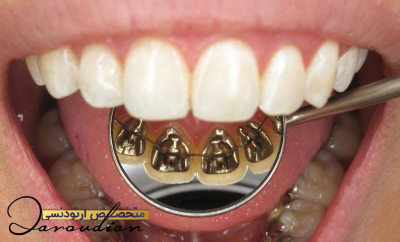 What are the most important benefits of lingual orthodontics