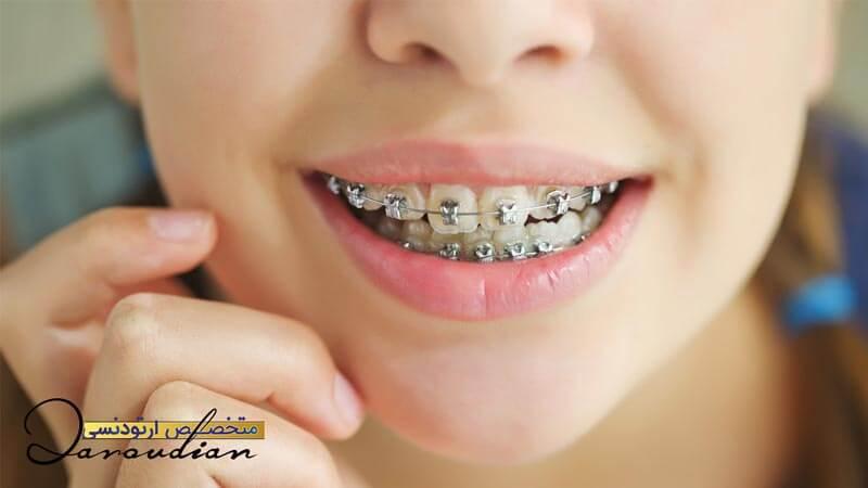 چه افرادی نیازمند ارتودنسی دندان های خود هستند؟