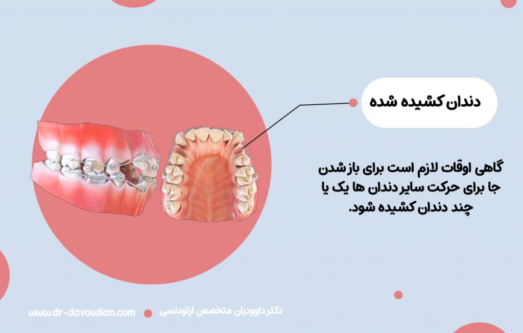اینفوگرافی لزوم کشیدن دندان در ارتودنسی و تاثیر آن بر هزینه ارتودنسی دندان