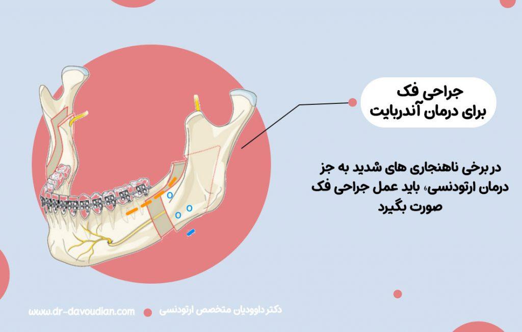 اینفوگرافیک جراحی فک و تاثیر آن در هزینه ارتودنسی دندان در سال 1400