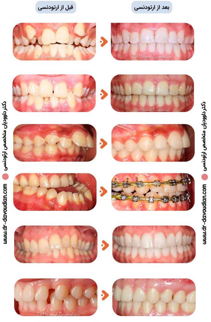 تصاویر قبل و بعد از ارتودنسی مربوط به بیماران دکتر داوودیان