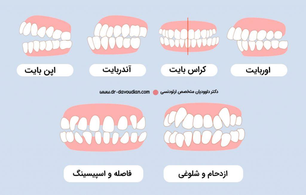 تصویر الات و مشکلاتی دندانی که ارتودنسی نامرئی برطرف می کند