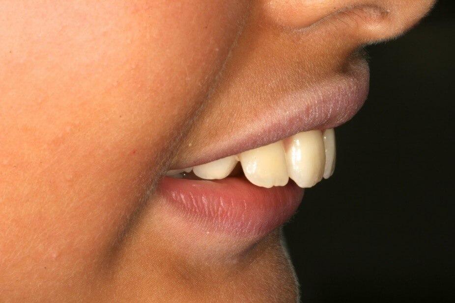 ارتودنسی دندان خرگوشی