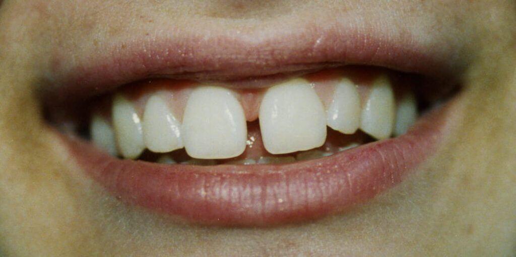 عوامل ایجاد دندان حرگوشی