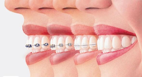 ارتودنسی بهترین و اصلی ترین راه درمان دندان های خرگوشی
