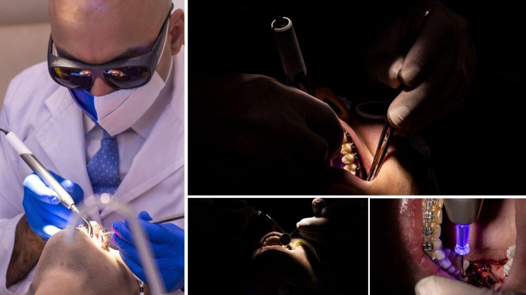 تصاویر ارتودنسی با لیزر دیود توسط دکتر داوودیان